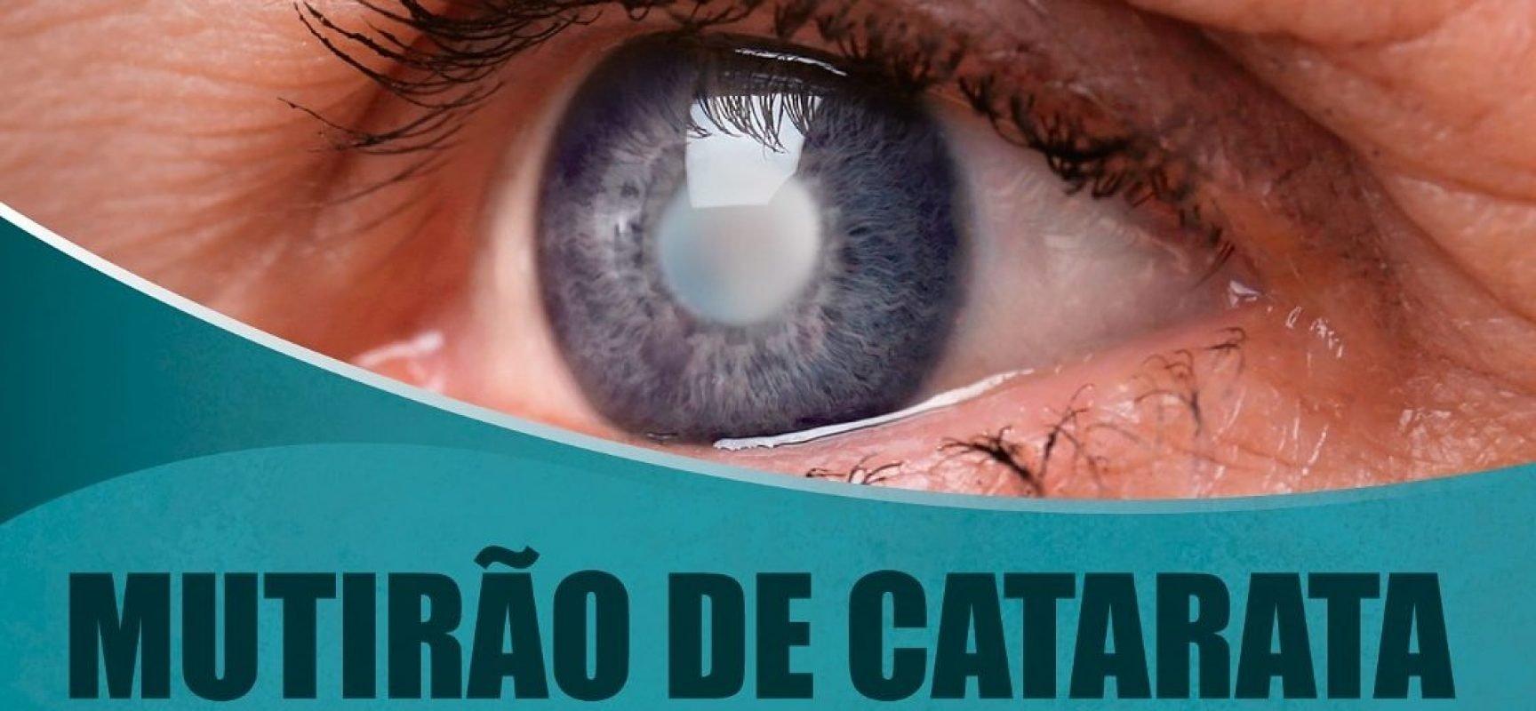 Prefeitura de Parnaíba anuncia a realização de um Mutirão da Catarata